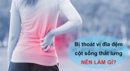 dieu-can-biet-khi-bi-thoat-vi-dia-dem-cot-song-that-lung