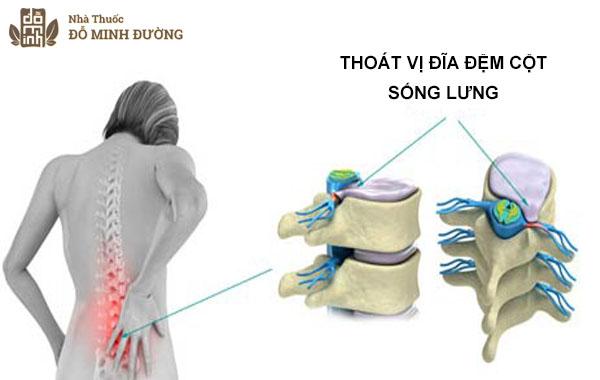 nguyen-nhan-trieu-chung-thoat-vi-dia-dem-cot-song-that-lung-la-gi