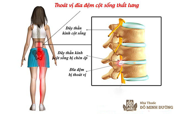 tim-hieu-nguyen-nhan-trieu-chung-thoat-vi-dia-dem-cot-song-that-lung